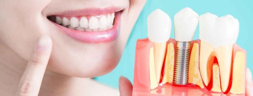 Dental Implants in Upper Darby, PA